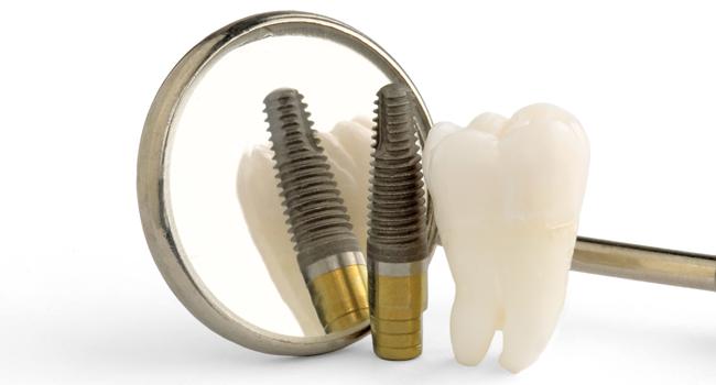 MasterDent - Implantologia