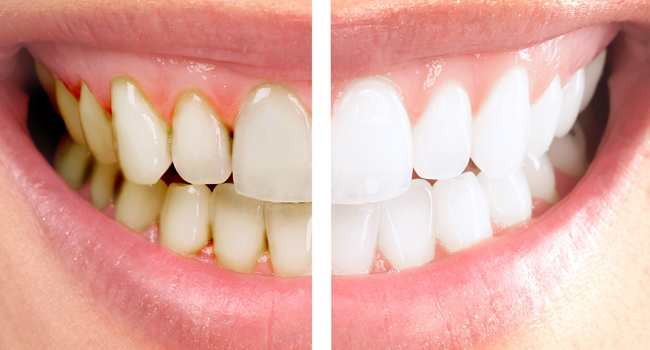 MasterDent - stomatologia Estetyczna